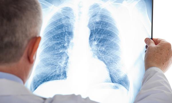 Antioxydants et risque de cancer du poumon