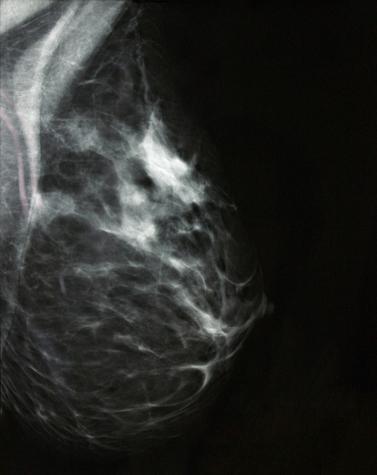 Percer le mystère des glandes mammaires