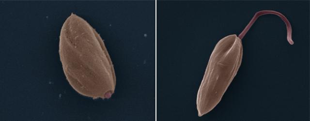 Forme amastigote et promastigote de Leishmania vue en microscopie électronique. Crédit : Zephyris sur Wikimedia