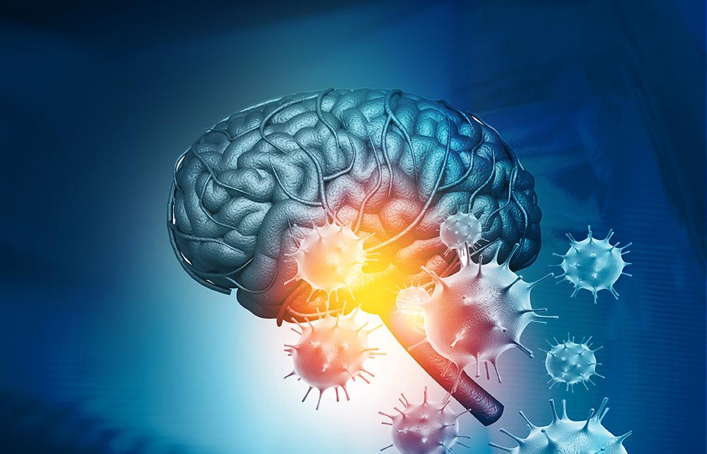 Les coronavirus humains pourraient s'attaquer aux neurones