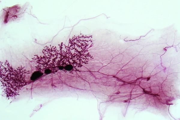 Cancer du sein : Les risques des retardateurs de flamme bromés